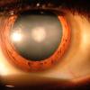 Las enfermedades oculares