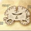 Alzheimer | Nuevos avances en las investigaciones