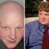 Un fármaco hace que un hombre calvo vuelva a tener pelo