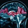 Primeros auxilios| Ataque epilepsia