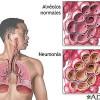 Neumonía: qué es, síntomas y tratamiento