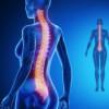 Escoliosis: qué es, causas, síntomas, diagnóstico y tratamiento
