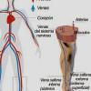Flebitis: Qué es, tipos, síntomas y cómo evitar