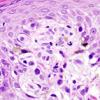 Cancer de piel ¿Existe una epidemia?