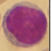 Sistema inmunologico | Descubren una nueva celula