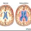 Cancer | Meningitis neoplásica e hidrocefalia