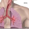 Sintomas del asma infantil