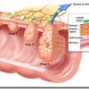 Cancer de Colon | Descubren nuevos genes asociados a la enfermedad