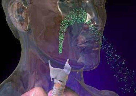 Medicamentos Broncodilatadores