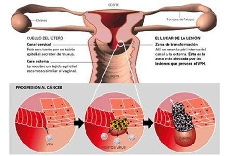 1528_esquema de utero y HPV