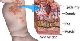 Ectima | enfermedades bacterianas
