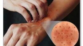 Dermatitis tipos