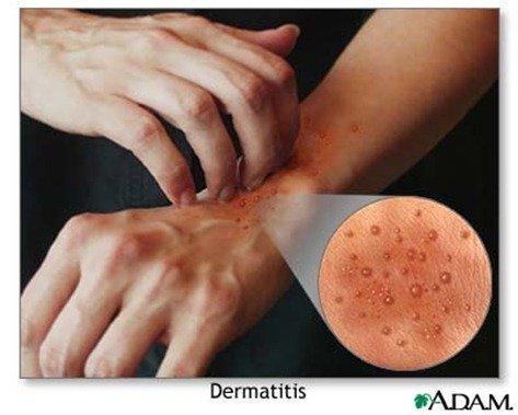 Las cremas del ungüento a atopicheskom la dermatitis a los niños