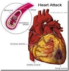 Muerte súbita cardiovascular