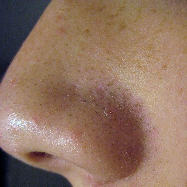 La crema contra el acné antes y después de ugrevoy de la eflorescencia