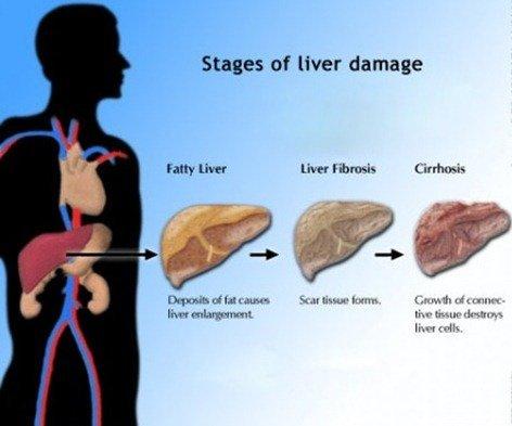 Cirrhosis-of-the-Liver-450x375