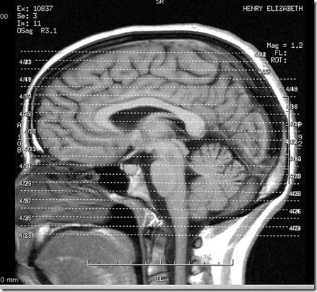 Curiosidades del cuerpo humano El cerebro