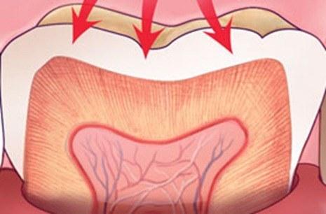 Las bebidas energeticas y deportivas pueden dañar los dientes