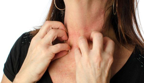 Efectos secundarios de la amoxicilina alergias irritaciones cutaneas
