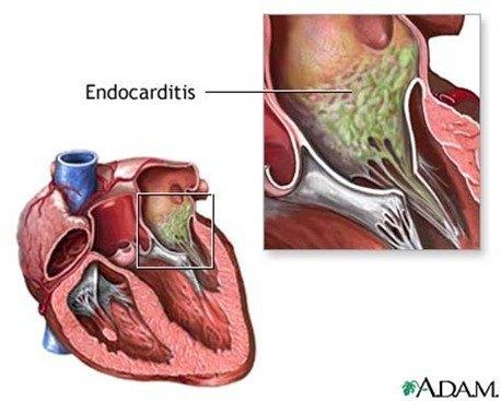 Endocarditisss