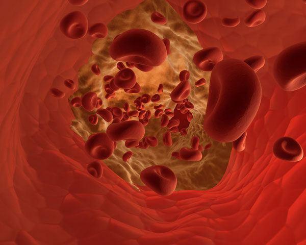 Enfermedades destruccion masiva plaquetas