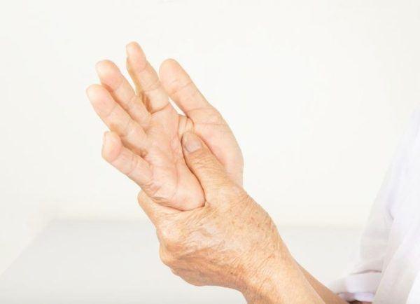 Es contagioso el lupus alteracion del sistema inmunologico