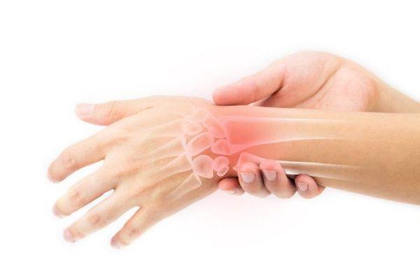 Factores de riesgo del lupus necrosis avascular