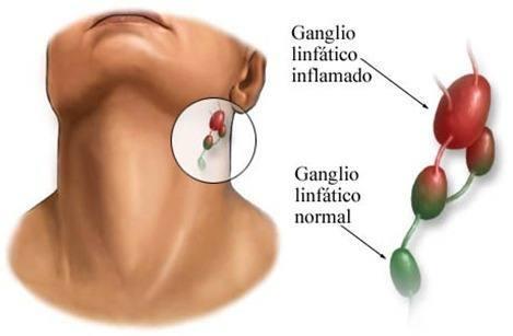 Ganglios-linfatico-especifico