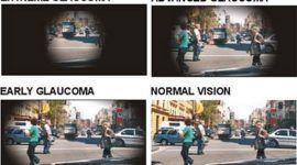 ¿Qué es un glaucoma?