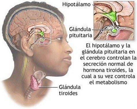 Síntomas Hipotiroidismo