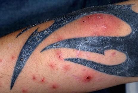 Riesgos de los tatuajes