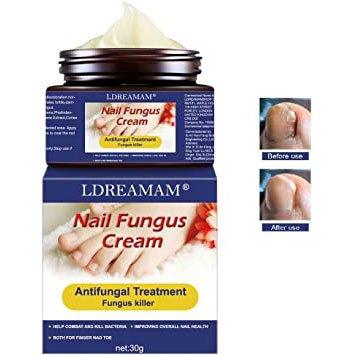 LDREAMAM Crema para hongos en las uñas
