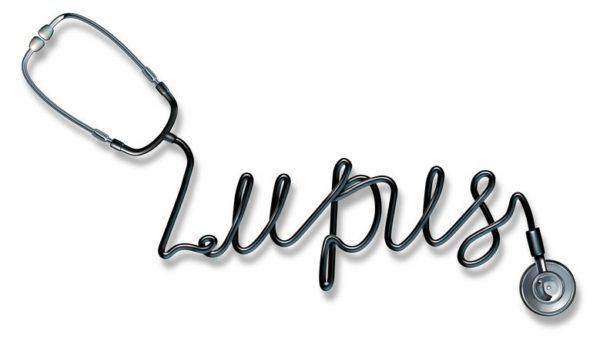 Lupus sintomas y tratamiento enfermedad compleja