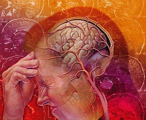 Migraine red Headache