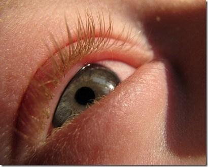 Mitos sobre las alergias