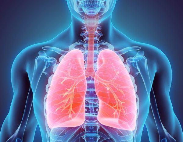 Neumonia contagio infeccion en los pulmones