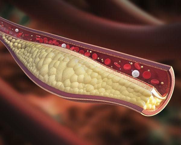 Niveles normales colesterol
