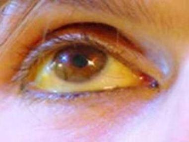 Ojos_Amarillos