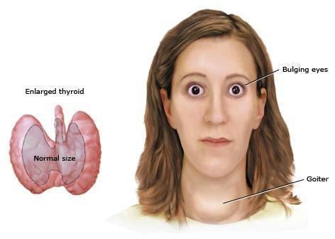 enfermedades de la tiroides pdf