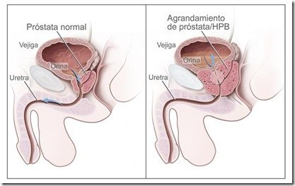 Prostata4
