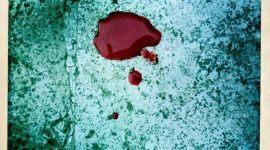 Anemia (hematies bajos): Síntomas y Causas