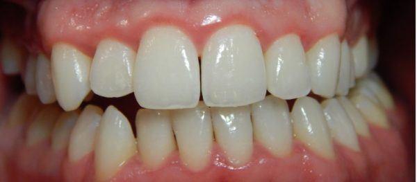 Que es la gingivitis salud bucodental