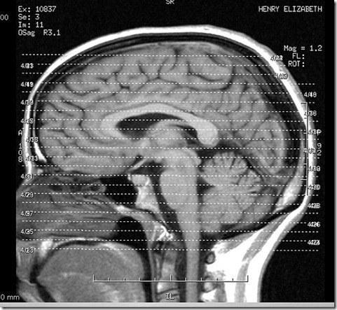 Que es un derrame cerebral3