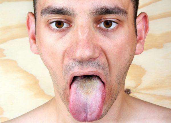 Sintomas de la candidiasis irritacion