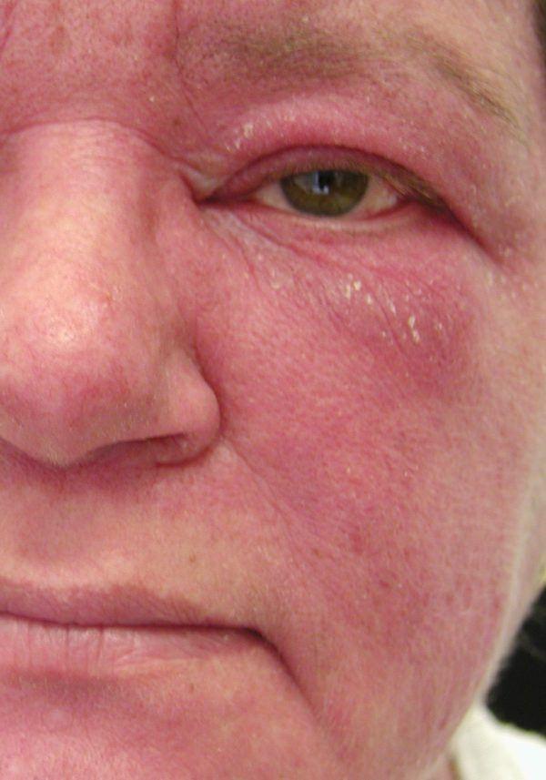 Sintomas del lupus erupciones cutaneas