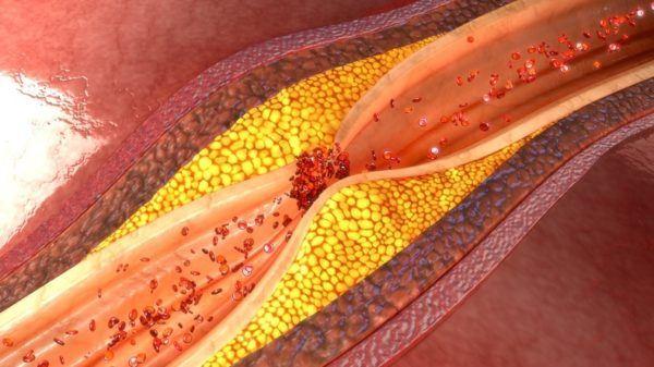 Son malas las grasas saturadas para el colesterol