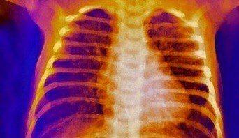 Tietzes-syndrome_342x198_P590250.jpg