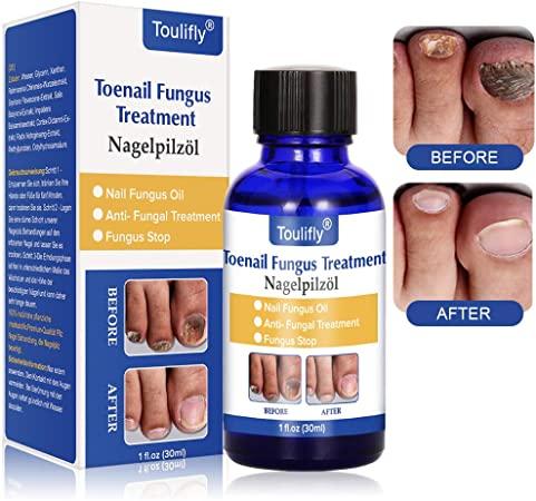 Tratamiento de hongos en las uñas de los pies Toulifly