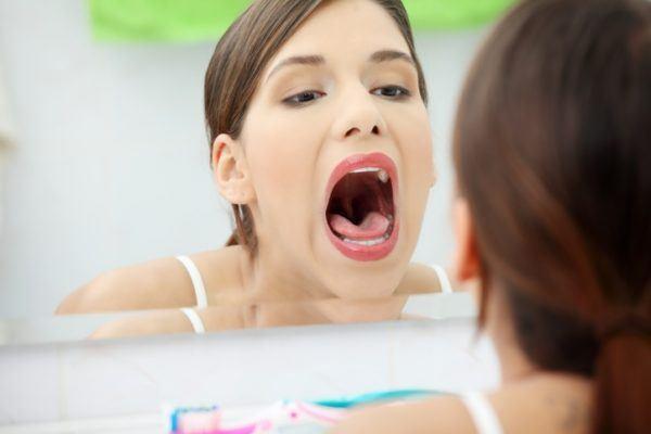 Tratamiento para la gingivitis limpieza bucal