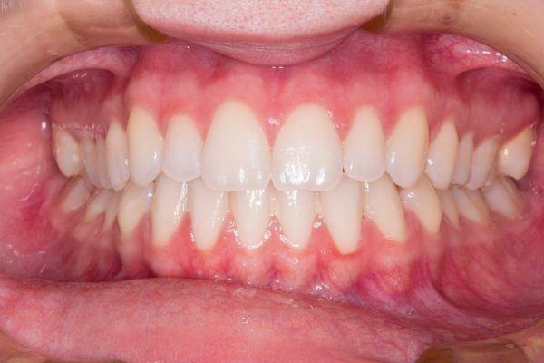 Tratamiento para la gingivitis proteger nuestra boca
